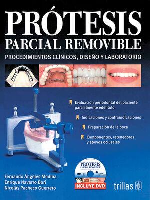 PROTESIS PARCIAL REMOVIBLE. INCLUYE DVD
