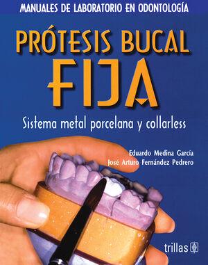 PROTESIS BUCAL FIJA